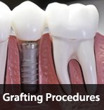 Grafting Procedures
