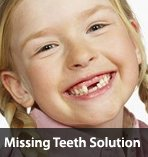 Missing Teeth Solutions